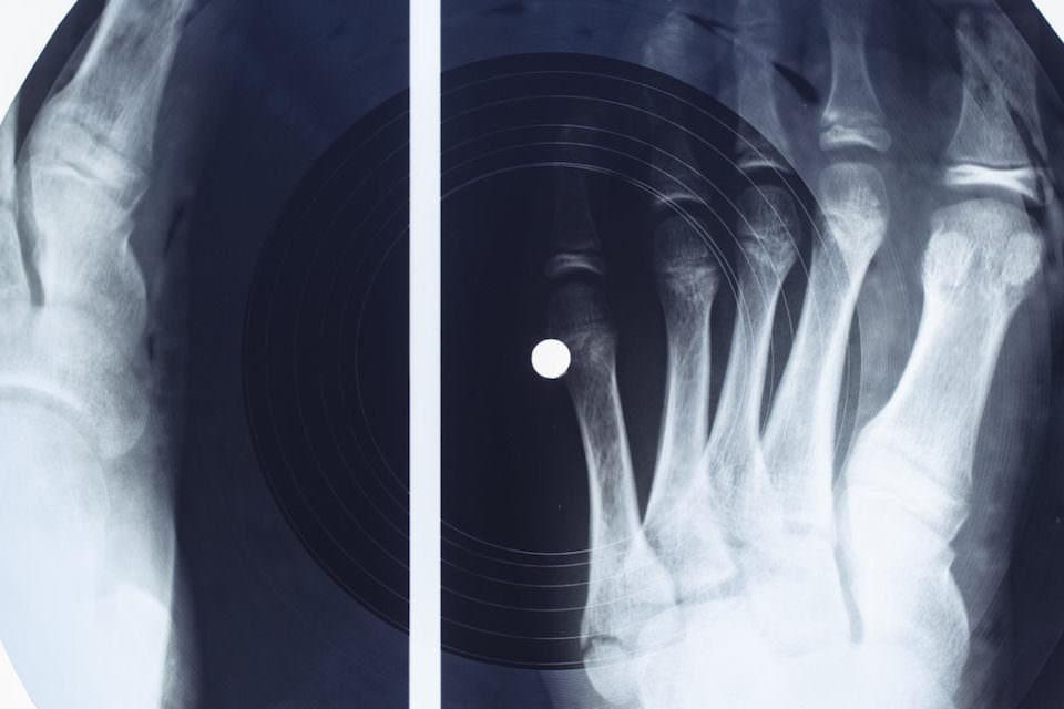 Massive Attack записала кавер на «Все идет по плану» на пластинку из рентгеновского снимка
